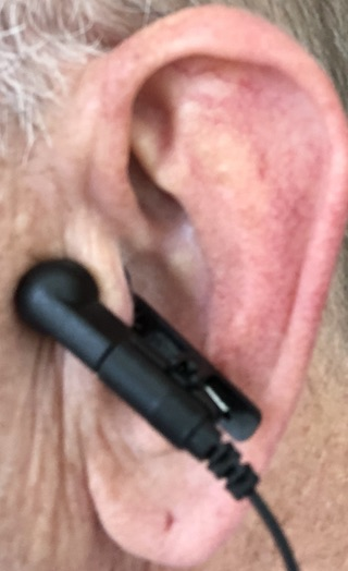 Non-Invasive Vagus Nerve Stimulator Attached to the Auricular Concha via Ear Clip