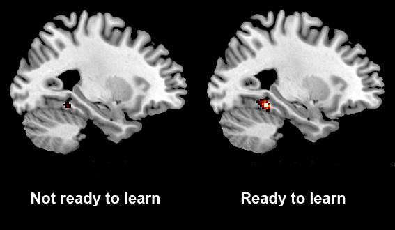ces-brain