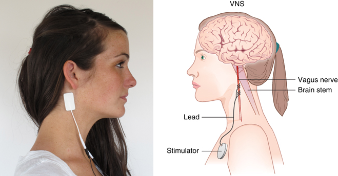 Vagus Nerve Stimulation Reduces Inflammation And The Symptoms Of